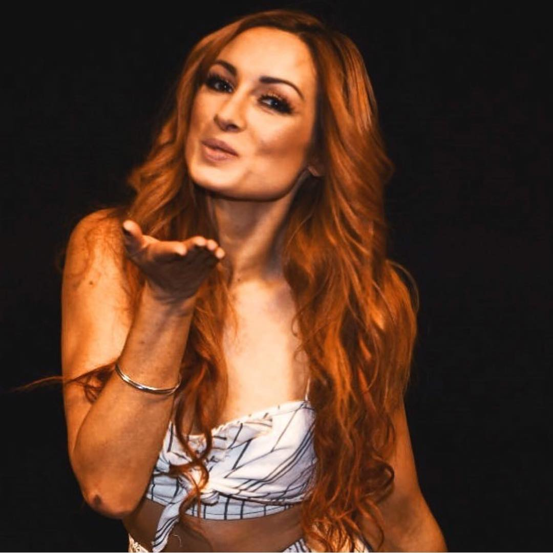 Becky Lynch Kiss