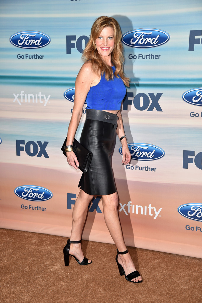 Anna Gunn on Fox Shows